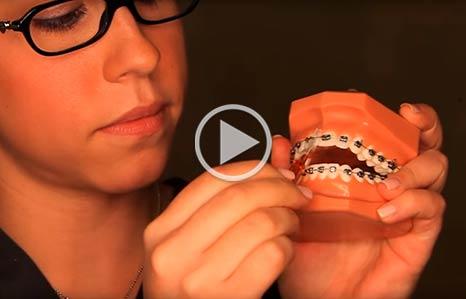AAO Straighten Up Orthodontics in Clearwater FL