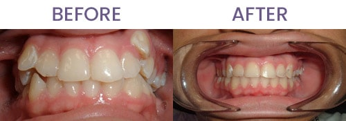 Before and After Straighten Up Orthodontics in Clearwater FL